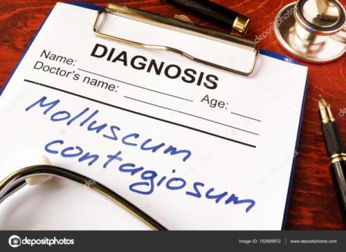 depositphotos 152689972-stock-photo-molluscum-contagiosum-mc-written-in
